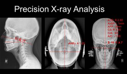 Precision X-ray Analysis